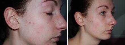 Superbalanced Makeup Clinique review